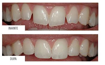 Restaurare dinti